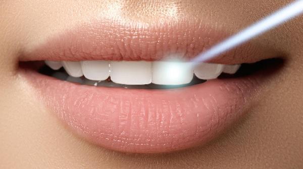 IZBJELJIVANJE laserom po čeljusti